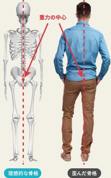 理想的な骨格・歪んだ骨格
