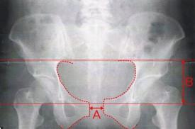 出産後の骨盤の開きと歪み